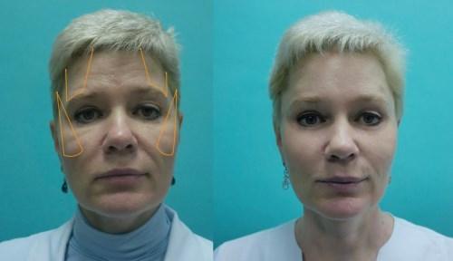 gosudarstvennaja_plasticheskaja_hirurgija_v_moskve_2