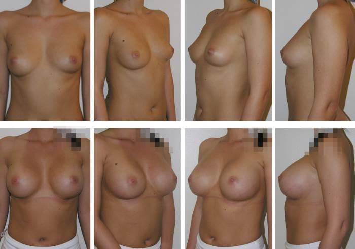 skolko_stoit_operacija_po_uvelicheniju_grudi_stoimost_mammoplastiki_1
