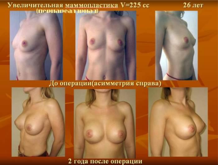 skolko_stoit_operacija_po_uvelicheniju_grudi_stoimost_mammoplastiki_5