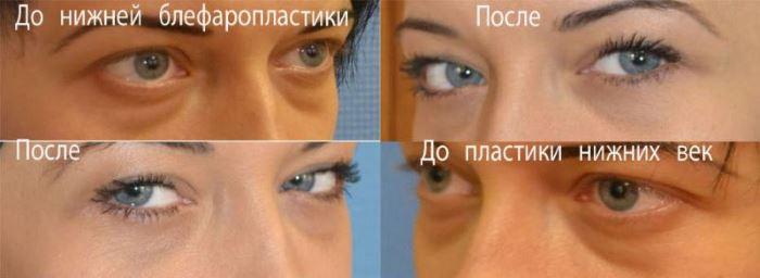 blefaroplastika_verhnih_vek_cena_v_moskve_1