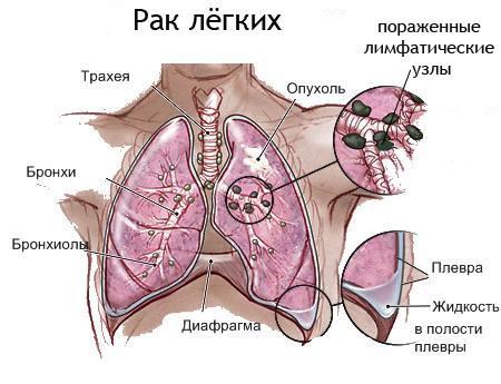 stoimost_lechenija_raka_legkogo_v_Izraile_2