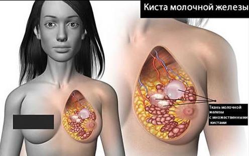 prichiny_vozniknovenija_kisty_molochnoj_zhelezy