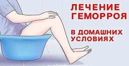 Lechenie_gemorroja_v_domashnih_uslovijah