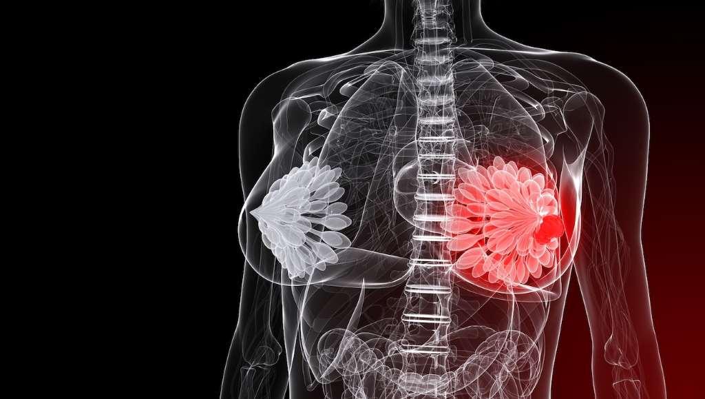 Киста молочной железы – причины, симптомы, виды и лечение кисты молочной железы