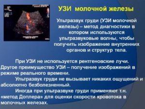 Asimmetrija-molochnyh-zhelez-prichiny-Ultrazvuk-grudi