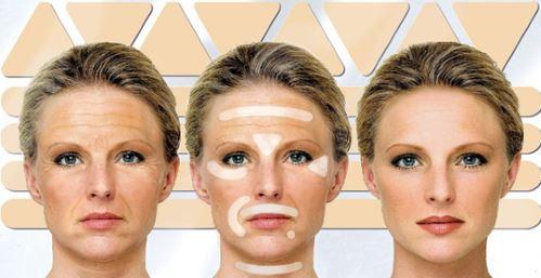 Naturalnye-alternativy-Botoksu-Frownies-Plastyri-ot-morshhin-Frotox