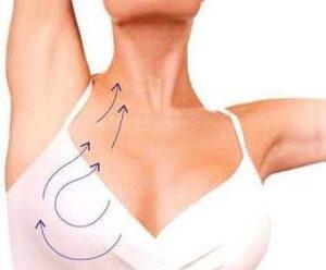 Podtjazhka-obvisshej-grudi-kosmeticheskaja-procedura-aptos