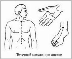 Primenenie-akupunktury-dlja-lechenija-anginy
