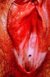 Vulvalnyj-vid-bakterialnogo-vaginoza