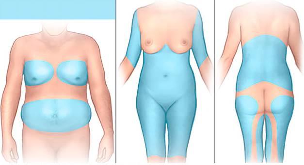 Что такое липосакция тела